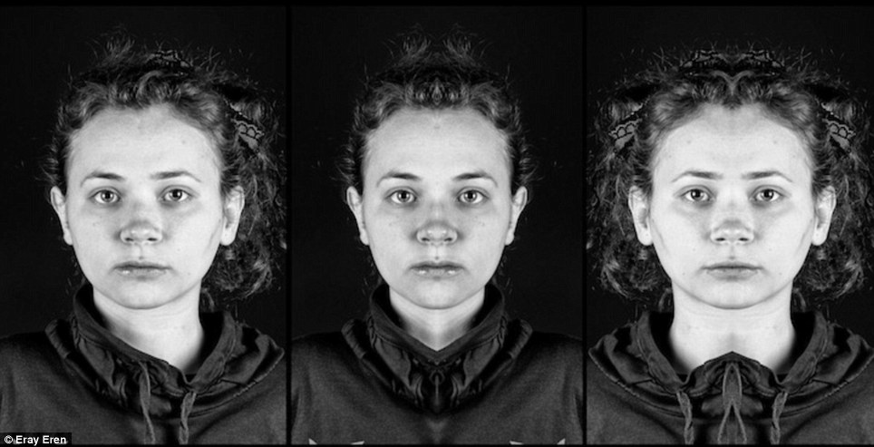 Facial asymmetry